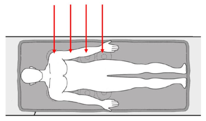 Magnetfeldbehandlung Osteoporose Oberkörper